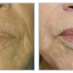 Forever Young BBL 21, before and after lips wrinkles