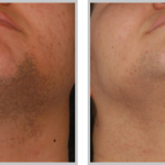 Laser Hair Removal 11, before and after picture of chin and neck