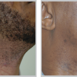 Laser Hair Removal 21, before and after picture of cheek