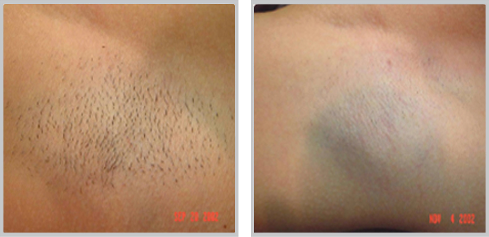 Laser Hair Removal 31, before and after picture of underarm